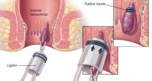 علاج البواسير