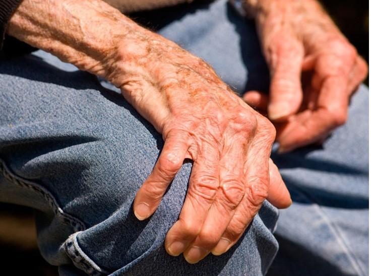 """اعراض مرض الباركنسون """"الشلل الرعاش """""""