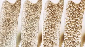 طرق علاج هشاشة العظام