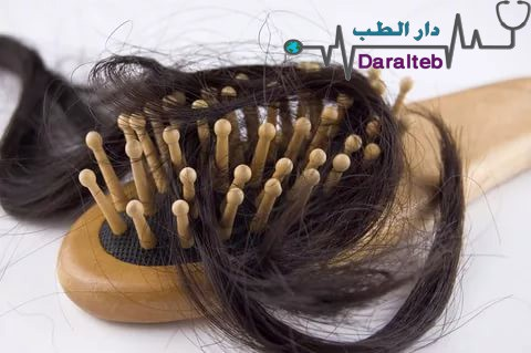 افضل علاج لتساقط الشعر - اساب تساقط الشعر وعلاجه