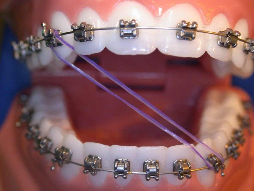 Photo of كل ما تريد معرفته عن تقويم الاسنان