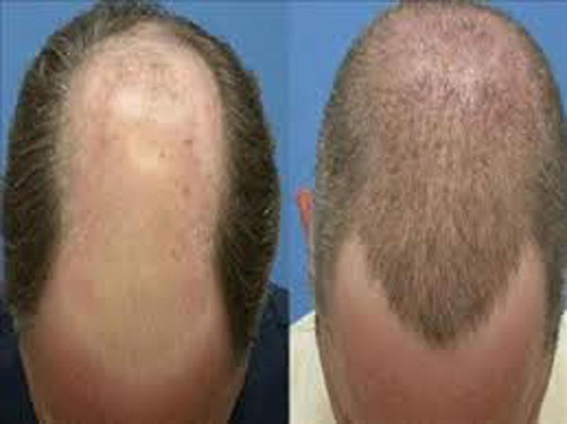 ماهو زراعة الشعر