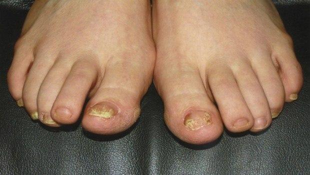 علاج فطريات القدم بالطب النبوي
