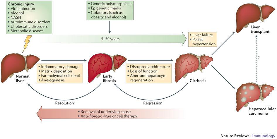 طرق علاج التليف الكبدي