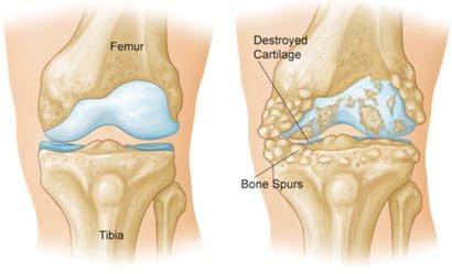 اسباب التهاب المفاصل