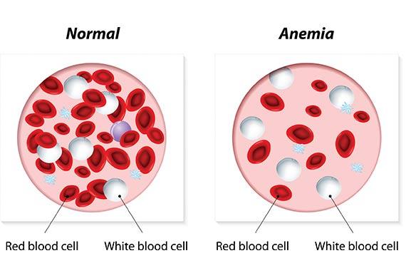 طرق الوقاية من الانيميا وفقر الدم