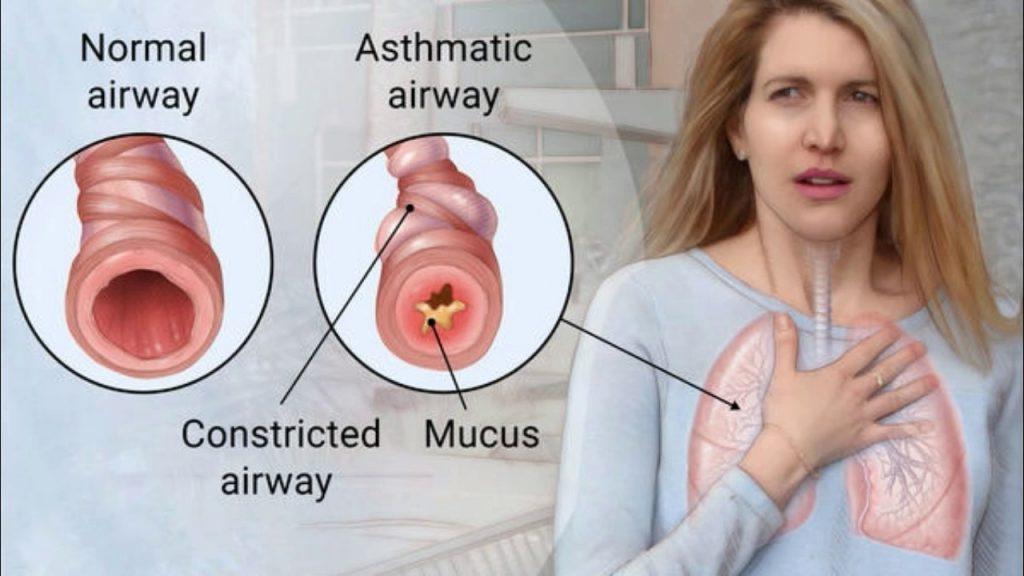 أعراضحساسية الصدر