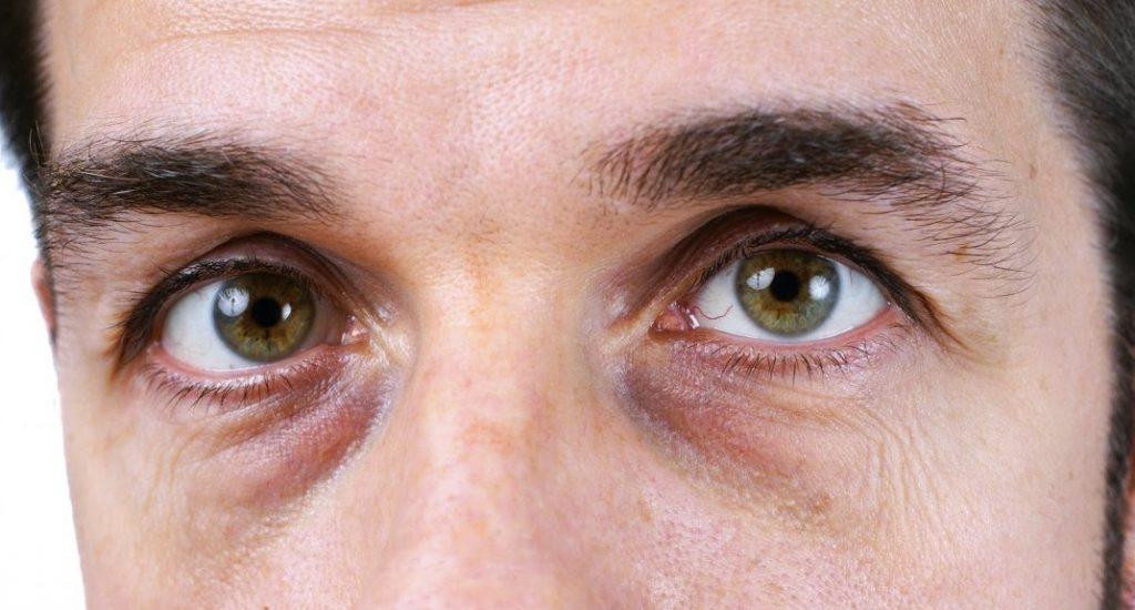 وصفات طبيعية لعلاج الهالات السوداء حول العين بأسبوع