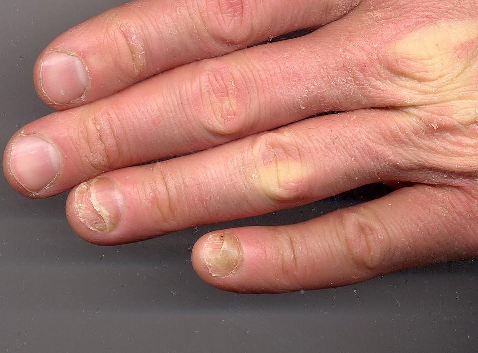 وصفات طبيعية لعلاج فطريات الاصابع