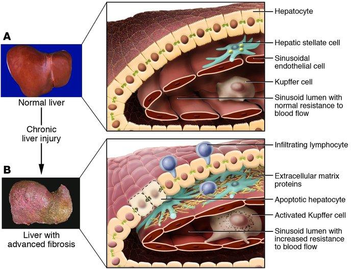 اسباب فيروسات الكبد