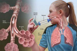 حساسية الصدر أعراضها وطرق علاجها