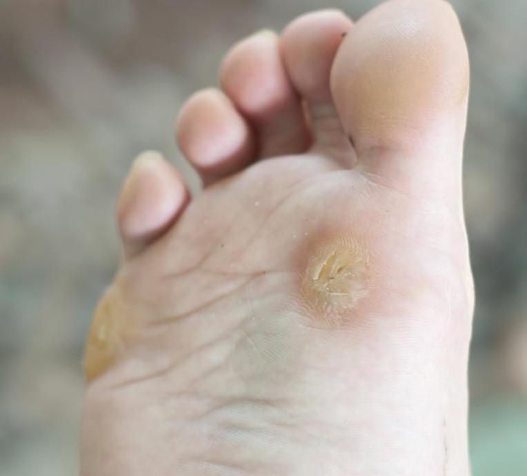 طرق الوقاية من فطريات القدم