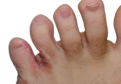 افضل ادوية لعلاج فطريات القدم