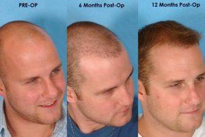 زراعة الشعر كيف تتم وما هي مخاطرها والفوائد