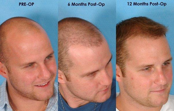 نتيجة زراعة الشعر