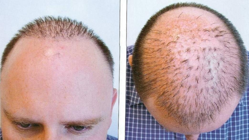 كيف تتم عملية زراعة الشعر