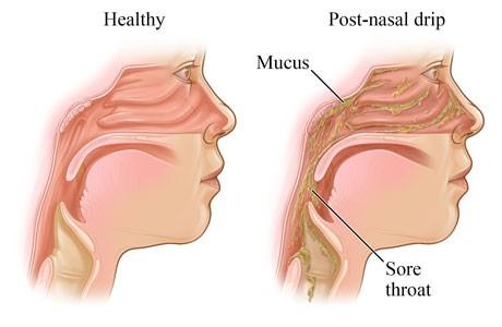 اسباب التهاب الحلق عند الاطفال
