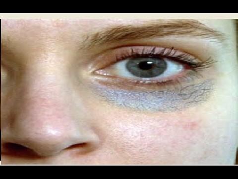 الهالات السوداء - علاج الهالات السوداء وازالة هالات العين