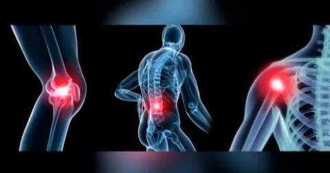 علاج التهاب المفاصل واسبابة واعراضة