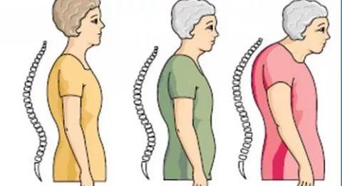 هشاشة العظام - علاج هشاشة العظام واسبابه واعراضه