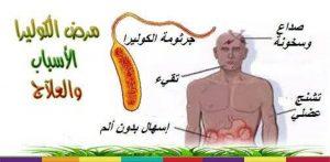 أعراض الكوليرا وتاريخها وعلاجها وطرق الوقاية منها