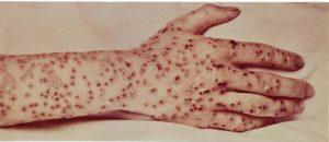 أعراض مرض الجديري المائي