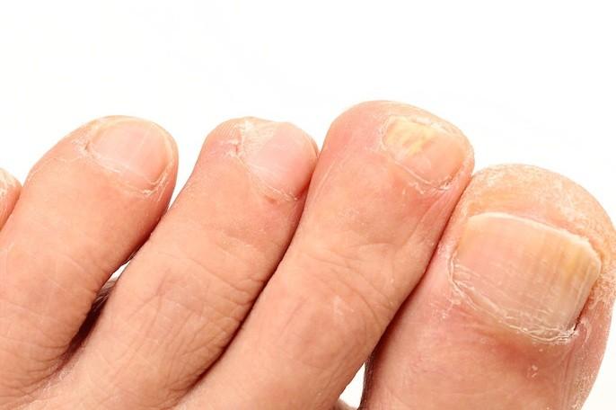 اعراض مصاحبة لفطريات الاظافر