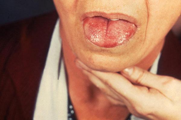 Photo of ما هو مرض السيدا؟.. أعراضه وأسباب الإصابة به ومراحل العدوى