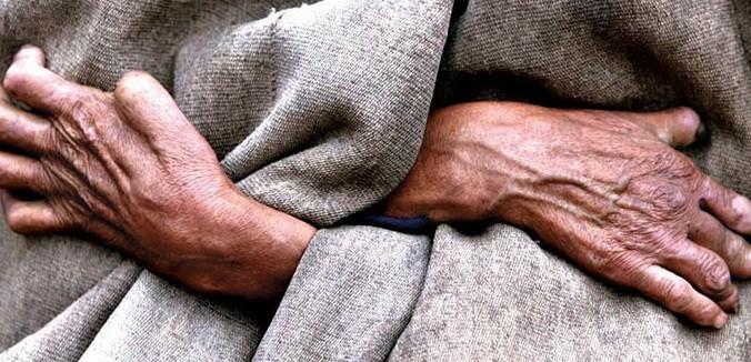 ما هو مرض الجذام؟ أسبابه وأعراضه وطرق علاجه