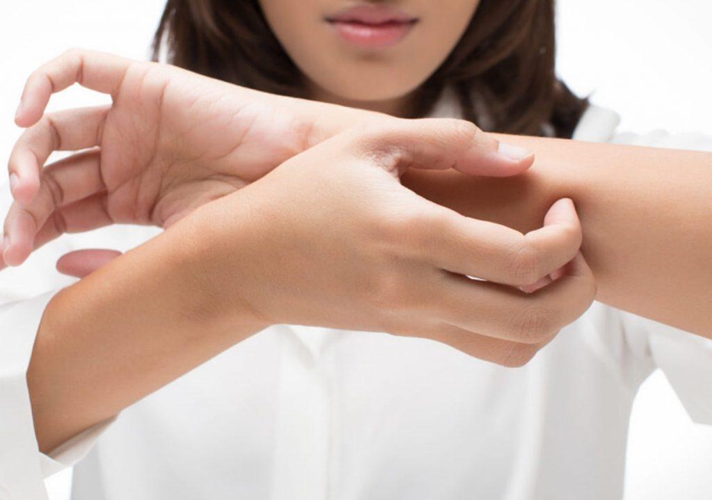 علاج حساسيه الجلد نهائياً بالاعشاب والطب البديل