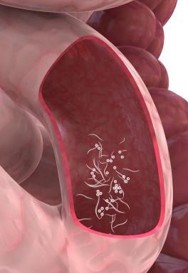 علاج ديدان البطن