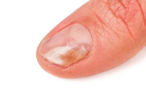 أمراض الأظافر - فطريات الأظافر وعلاجها