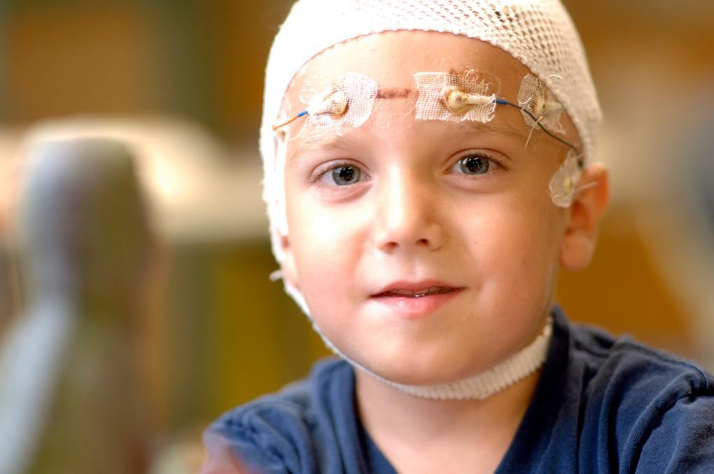 علاج الصرع عند الاطفال