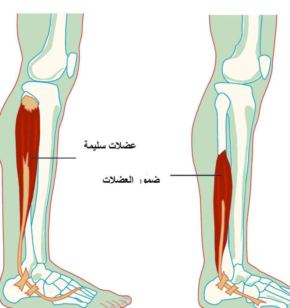Photo of مرض ضمور العضلات أسبابة طرق علاجة