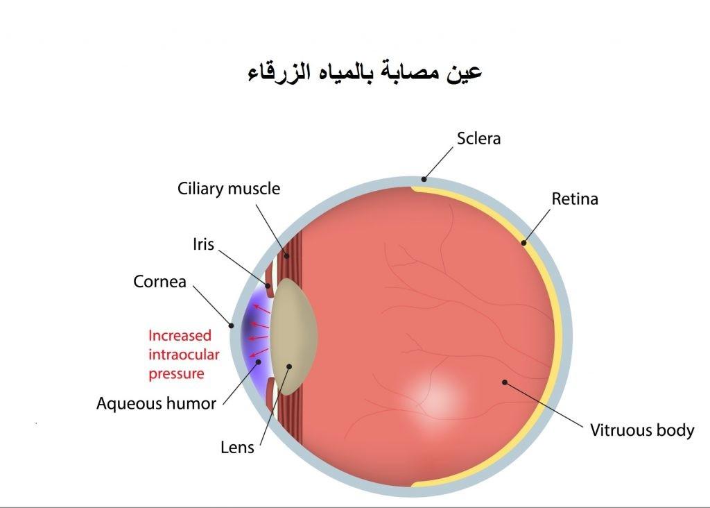 Photo of مرض المياه الزرقاء فى العين وطرق علاجه