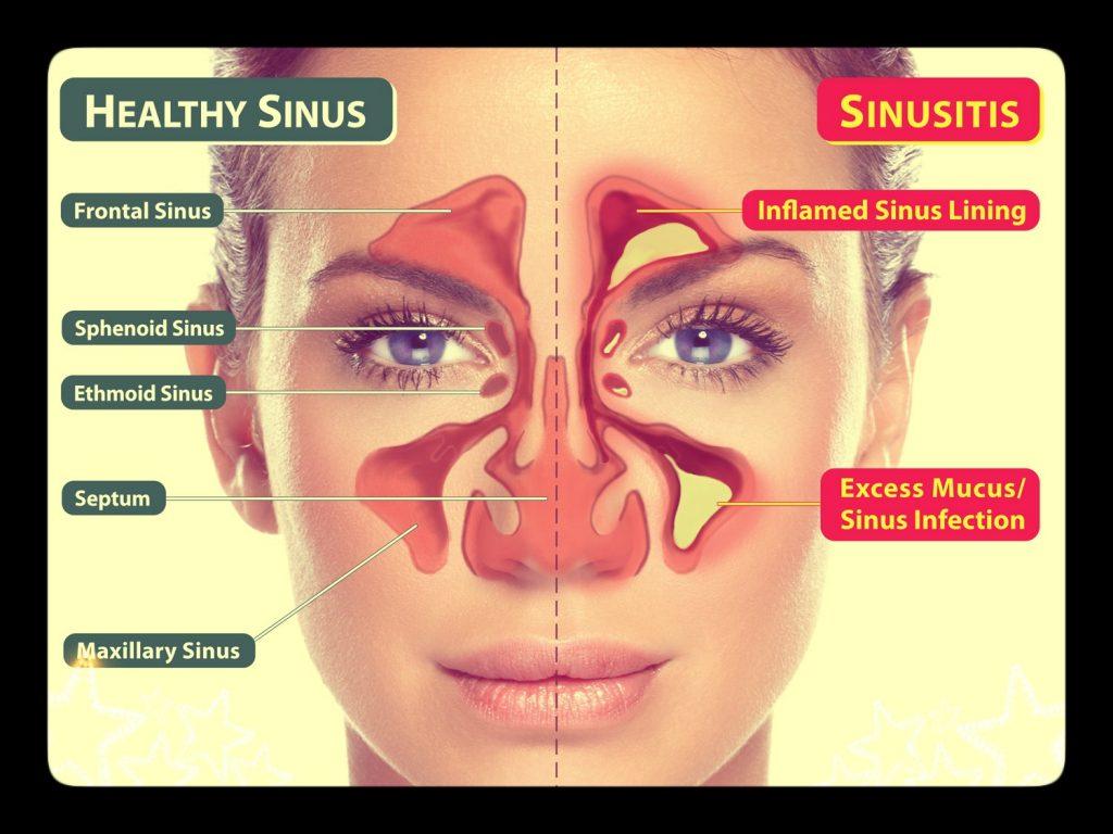 ما هو التهاب الجيوب الأنفية