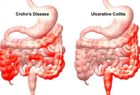 اعراض مرض كرون