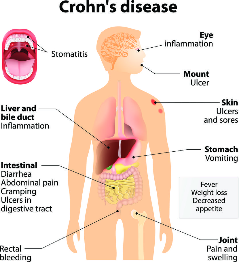 تشخيص مرض كرون