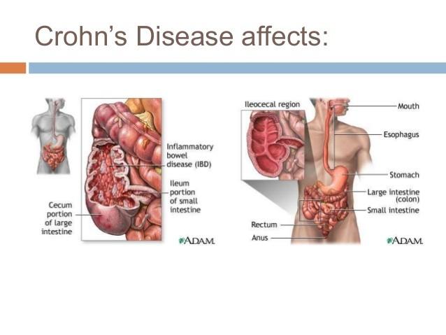 علاج مرض كرون