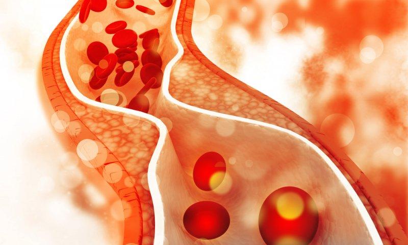 أسباب أرتفاع مرض الكوليسترول