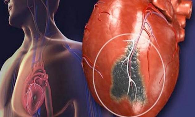 امراض القلب والشرايين وعلاجها