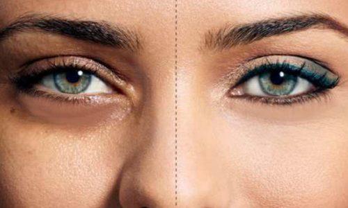 علاج الهالات السوداء حول العين نهائيا