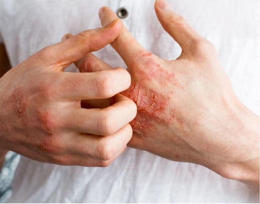 أسباب وعوامل خطر الأكزيما