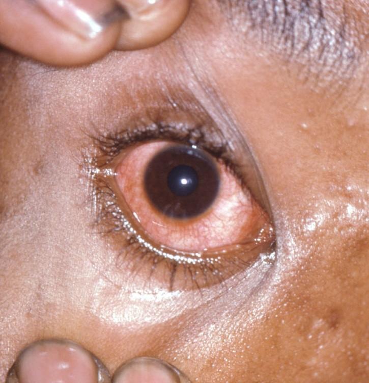 مرض السيلان وأعراضه وكيفية علاجه