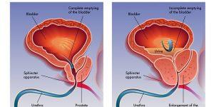 علاج البروستاتا بالاعشاب للدكتور عبد الباسط