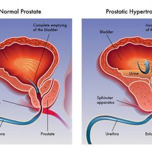 علاج البروستاتا بالاعشاب للدكتور عبد الباسط والقضاء على الألم نهائياً