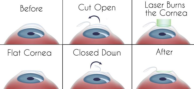 كيفية إجراء عملية الليزك: