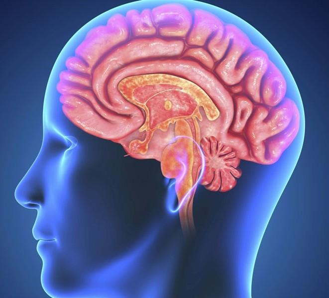 أعراض الجلطة الدماغية