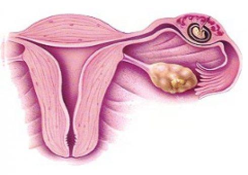 أسباب الحمل المنتبذ