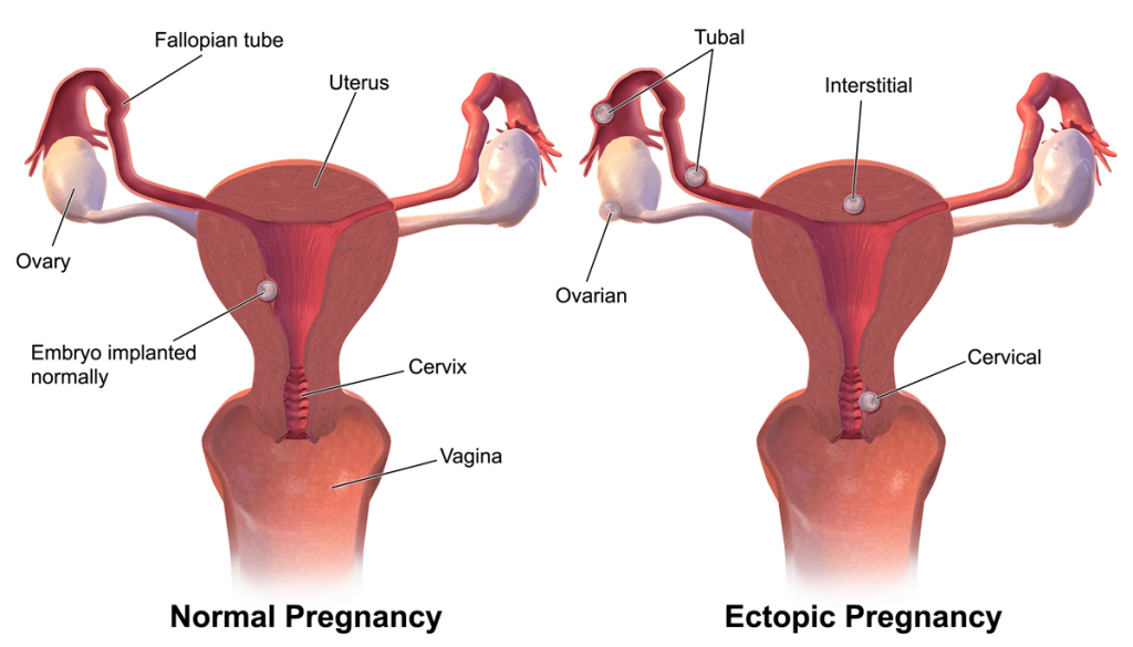 تشخيص الحملالمنتبذ